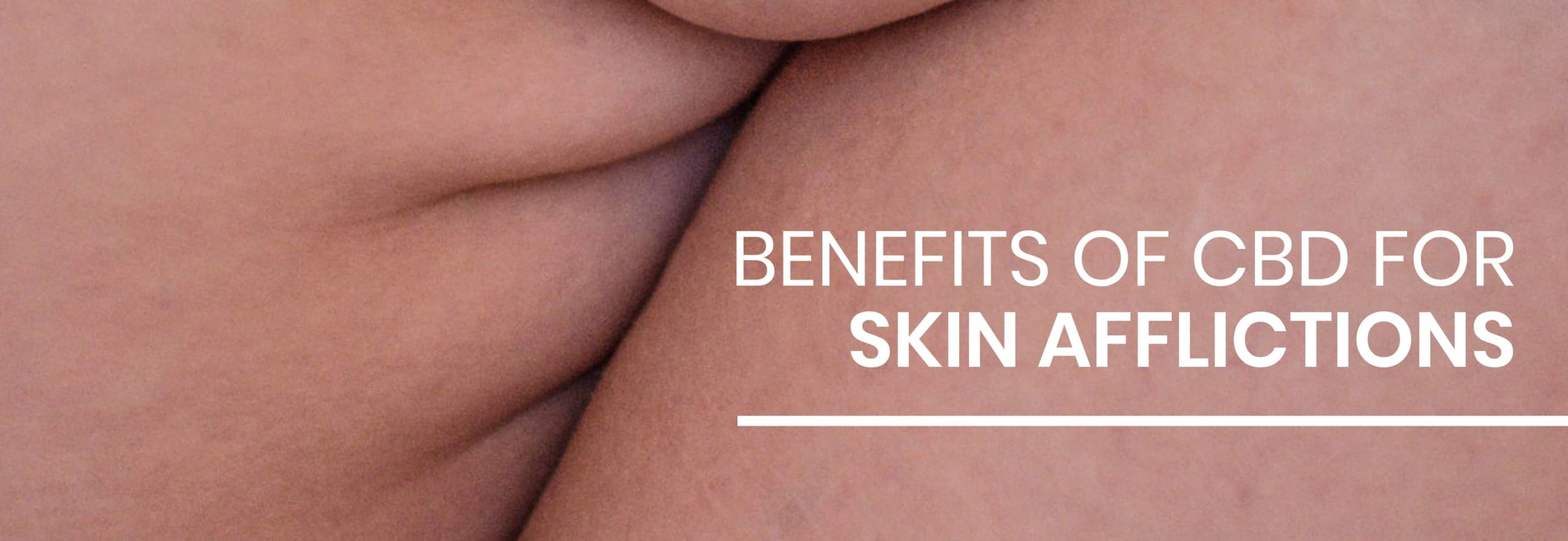 Why is CBD beneficial for our skin?